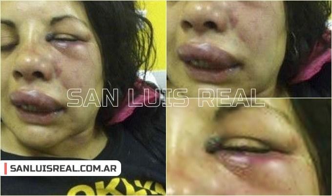 Villa de Merlo: Otra mujer víctima de la violencia de género